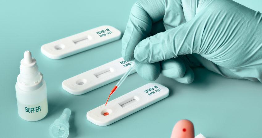 دقة فحوصات فيروس كورونا أكثر من 90% في تركيا